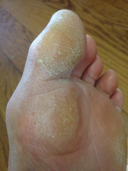 左足の親指と付け根