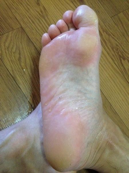 竹須液を吹きかけた足