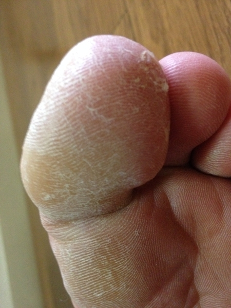 治療2日目 左足の親指2