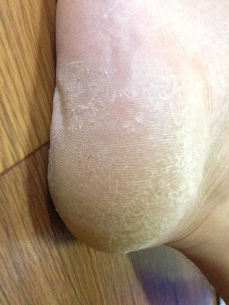 治療3日目 右足の踵