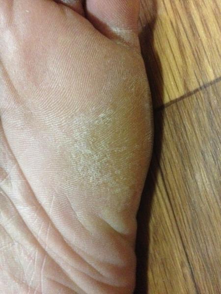 治療3日目 左足の小指側