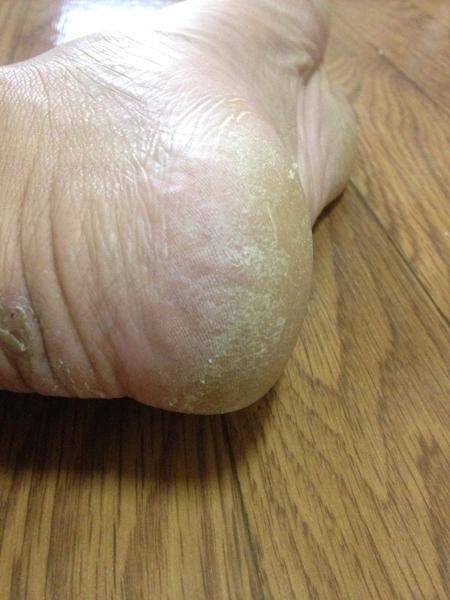 治療3日目 左足の踵1