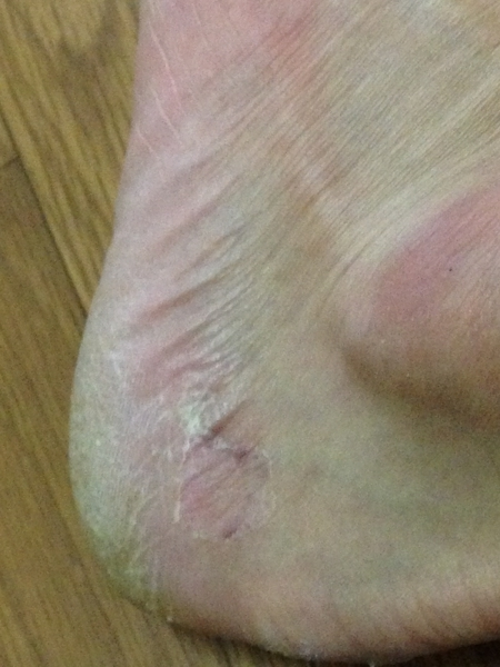 治療3日目 左足の踵の外側