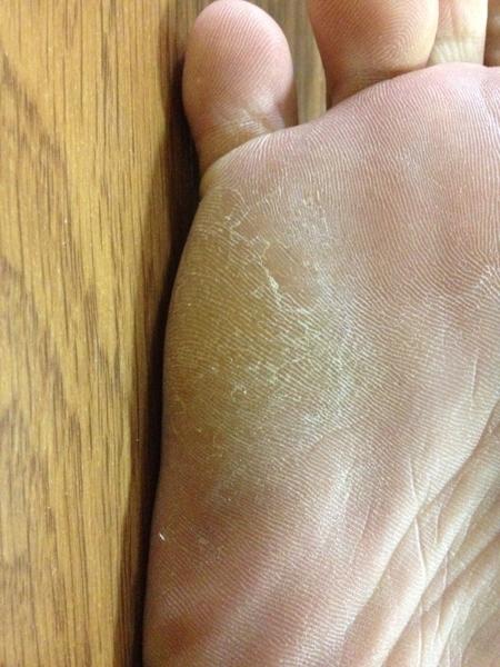 治療4日目 右足の小指側