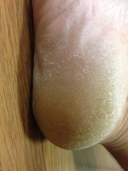 治療4日目 右足の踵