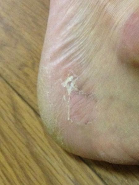 治療4日目 左足の踵の外側