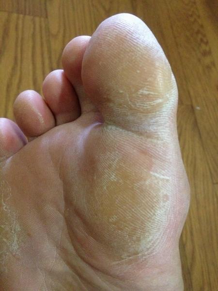 右足の親指とつけね