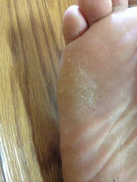 右足の小指側