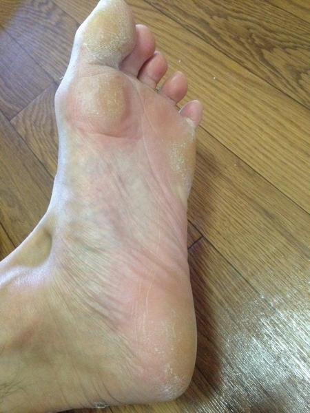 左足の全体
