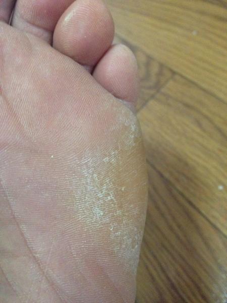 左足の小指側