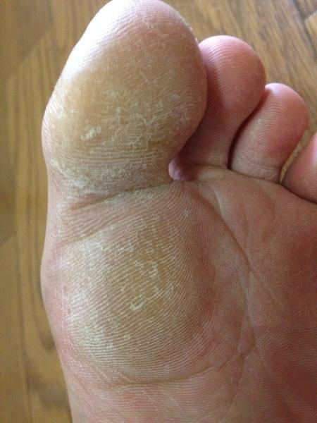治療2日目 左足の親指