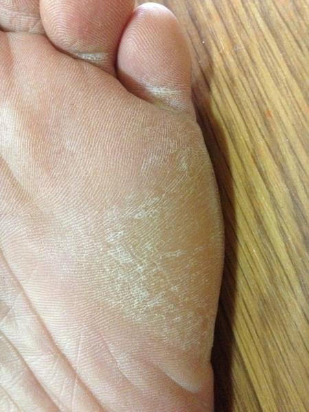 治療2日目 左足の小指側