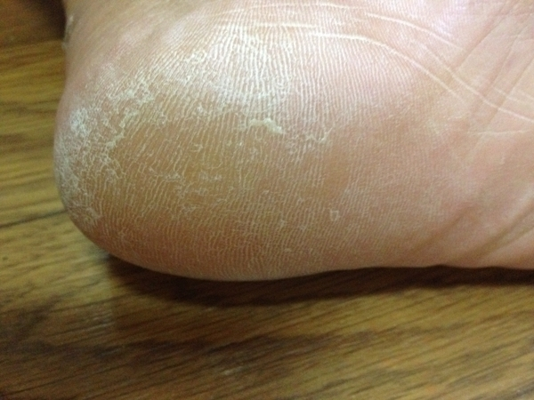 治療2日目 左足の踵