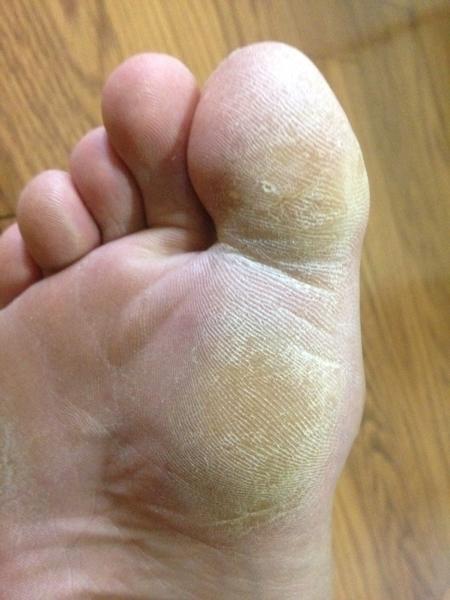 治療3日目 右足の親指