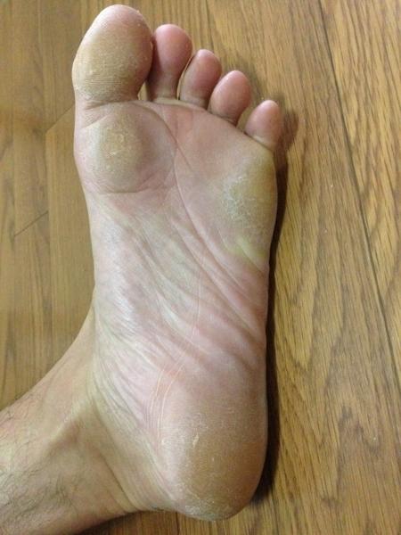 治療3日目 左足の全体