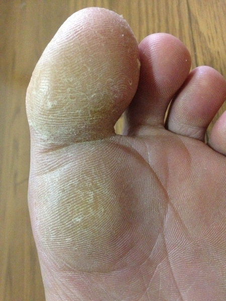 治療3日目 左足の親指