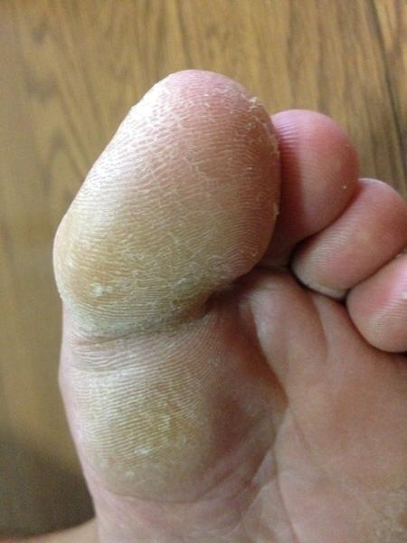治療3日目 左足の親指の先端
