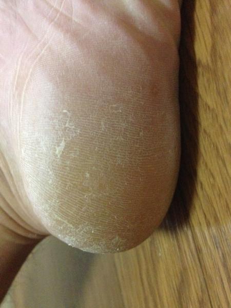 治療3日目 左足の踵