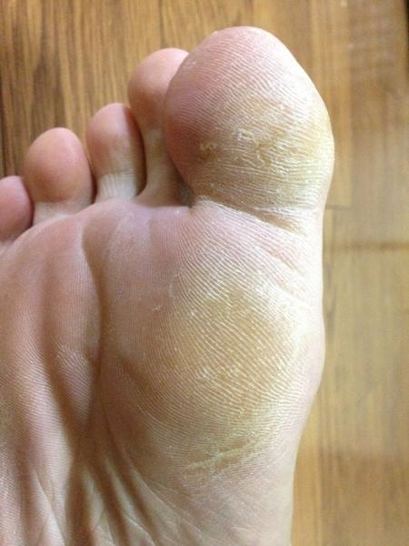 治療4日目 右足の親指