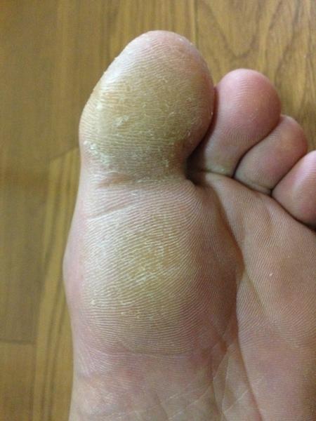 治療4日目 左足の親指
