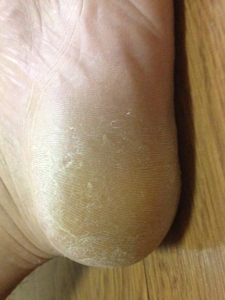 治療4日目 左足の踵